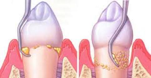 Parodontologija3