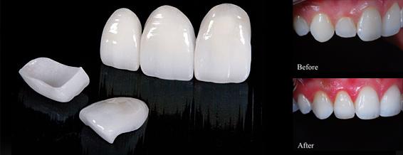 Порцеланови фасети (керамични фасети)