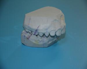 Funkcionalni ortodontski aparati-Monoblok i Tvinblok