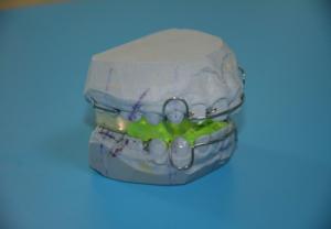 Funkcionalni ortodontski aparati-Monoblok i Tvinblok2