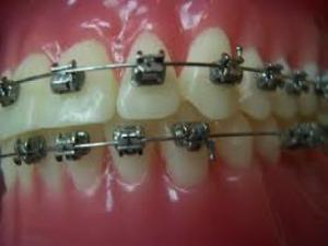 fiksni-ortodontski-aparati
